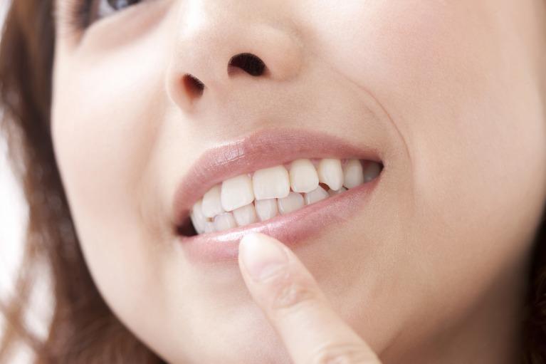 治療痕のわからない白い歯に