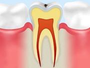 C0 【ごく初期の虫歯】