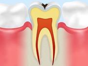 C1 【エナメル質の虫歯】