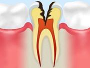 C3 【神経まで達した虫歯】