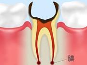 C4 【歯根まで達した虫歯】